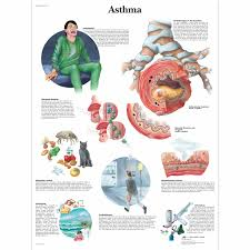 asthma chart asthma classification and management for children asthma chart vr0328l asthma patient education asthma models