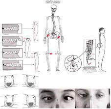 Risultati immagini per posturologia