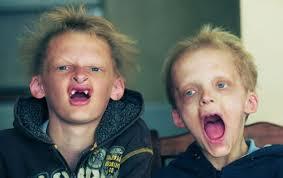 Abi brāļi sirgst no tā saucamās hipohidrotiskās ektodermālās displāzijas, kas arī ir pie vainas viņu bālajām sejām. Tas arī nozīmē, ka Sedberijā, ... - image001