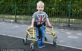 Image result for CEREBRAL PALSY