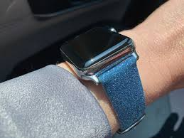 CASETiFY Apple <b>Watch</b> Bands review: Spoiled for choice | iMore