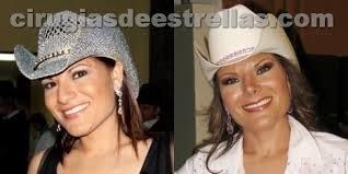 La cantante Diana Reyes tuvo una rinoplastia en el 2008 que generó un gran cambio en su rostro, ya que la operación no solo redujo el tamaño de su nariz, ... - diana-reyes-antes-y-despues