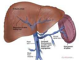 Image of liver for article on herbs for cirrhosis of the liver