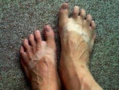 Ugly feet on Pinterest | Celebrity Feet, Toe Nails and Toenails via Relatably.com