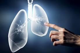「血液ガスと換気」の画像検索結果