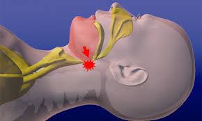 「睡眠時無呼吸症候群」の画像検索結果
