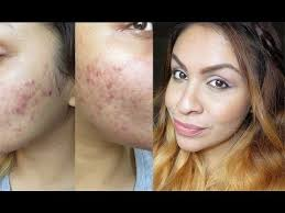how to hide cover acne redness rosacea scarring my full