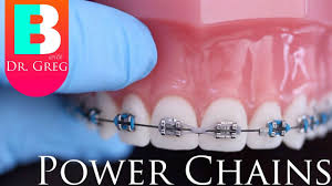 [<b>BRACES</b> EXPLAINED] Power Chains - YouTube