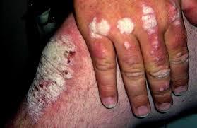 Artritis Psoriasica.Ejercicios para la artritis psoriásica