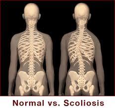 tulang belakang normal versi scoliosis