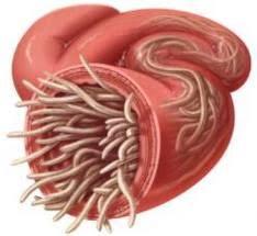 Image result for cacing pita di usus