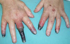 Image result for Hepatitis C