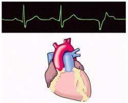 arrhythmia essay   cardiovascular diseases essays and lectures