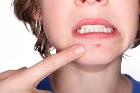 Resultado de imagem para acne
