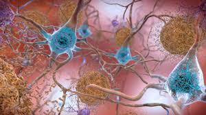 In shocking reversal, Biogen to submit Alzheimer