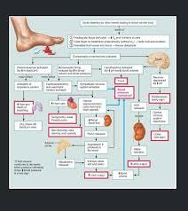 Hypovolemic shock   Nursing Mnemonics   Pinterest