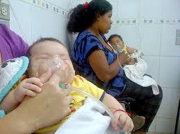 Resultado de imagen para Se incrementan los problemas respiratorios