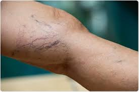 What are <b>Varicose Veins</b> and Can They be <b>Treated</b>?