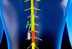 أجهزة استشعار لاسلكية تزرع بالجسم لمراقبة الأعصاب Images?q=tbn:ANd9GcS1z28u4LODU3bRjD2ffdyHiz1QWBQH8pWwzPgPl4vcXqLdQ5-JMg