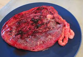 Image result for COOKED PLACENTA
