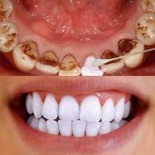 10ml Tooth W10ml/80ml Tooth Whitening Powder <b>Activated Coconut</b> ...