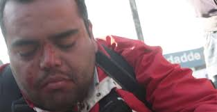 Ese día, el suboficial mayor Mauricio Muñoz fue atacado por varias personas, mientras sólo uno de los Carabineros que lo acompañaba se quedó a su lado para ... - cristian-gonzalez-herido
