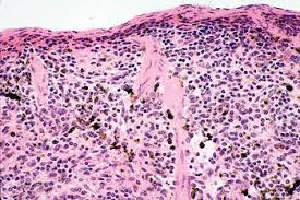 Image result for pathology on animal