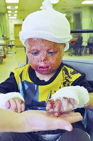 Image result for photos of injured iraqi children
