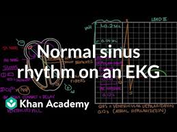 Normal sinus <b>rhythm</b> on an <b>EKG</b> (video) | Khan Academy