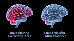 Image result for emdr