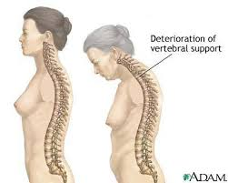 Image result for exercise for mild scoliosis