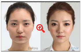look bigger in this country as in other asians the most por operations are eyelid surgery and jaw how to make your eyes bigger without makeup