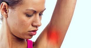 <b>Arm</b> Lump - Symptoms, Causes, Treatments | Healthgrades.com