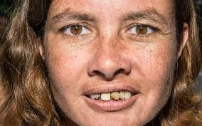 Image result for poor teeth