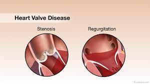Картинки по запросу Heart valve failure