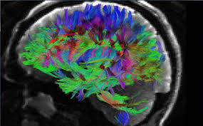 Αποτέλεσμα εικόνας για φωτο εγκεφαλου