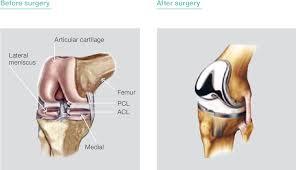 الخشونة .. خشونة الركبة the roughness of the knee