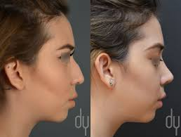 spring surgery healthy food spring nose jobs and beverly hills rhinoplasty specialist dr donald yoo performed a primary rhinoplasty this before and
