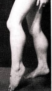 「進行性筋ジストロフィー症」の画像検索結果