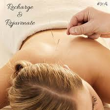 Image result for free pictures of acupuncture helping you relax