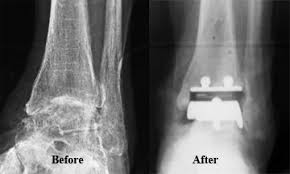 Image result for ankle replacement