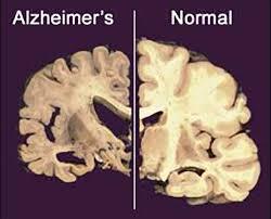 Resultado de imagen de cerebro alzheimer