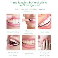 3 Modes Portable <b>Oral</b> Irrigator Dental Water Flosser <b>USB</b> ...