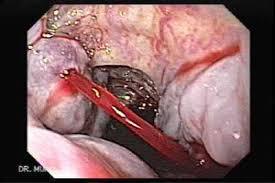 Imagini pentru esophageal varices rupture