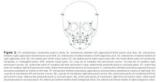 posteroanterior cephalometric analysis the norms for ian dental sciences pa cephalometric landmarks used study