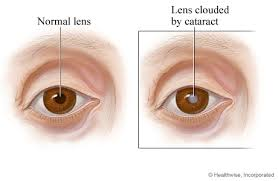 Image result for cataract images
