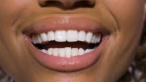 <b>Teeth whitening</b> treatments - <b>dentists</b>, <b>dental</b> care and products ...
