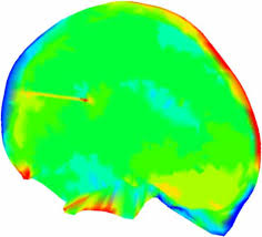 Development and Validation of a New Finite Element <b>Model</b> of ...