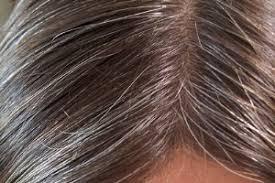 نتیجه تصویری برای عکس برای رفع سفیدی مو