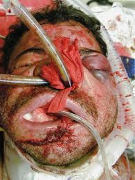 Image result for facial injury